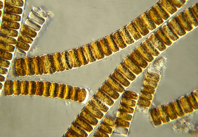 Brown algae diatoms viewed under a microscope