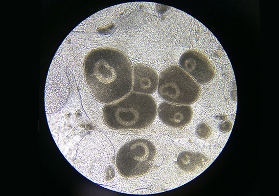 Freshwater aquarium Ich white spot disease viewed under microscope
